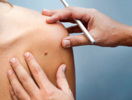 Skin cancer diagnosis apps are unreliable and poorly regulated, study shows